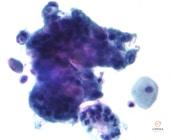 Adenokarcinoma