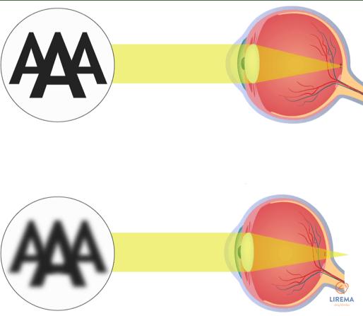 Normaregė (emetropa) ir toliaregė akis