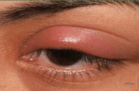 Paburkęs viršutinis akies vokas
