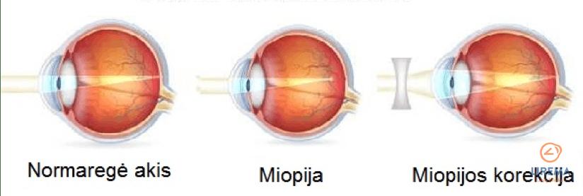 Trumparegystė: normaregė akis, miopija, miopijos korekcija