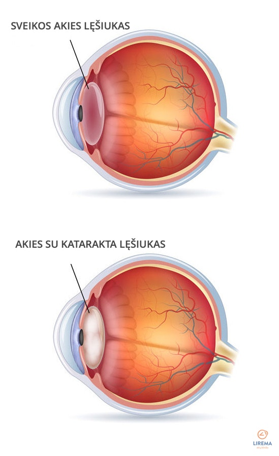 sveikos akies lęšiukas ir akies su katarakta lęšiukas