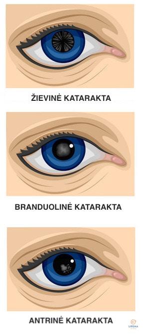 Kataraktos tipai